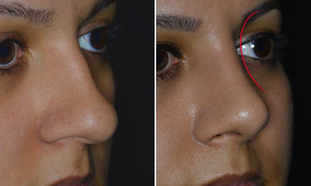 Optimierung der Augenbrauen-Nasenlinie