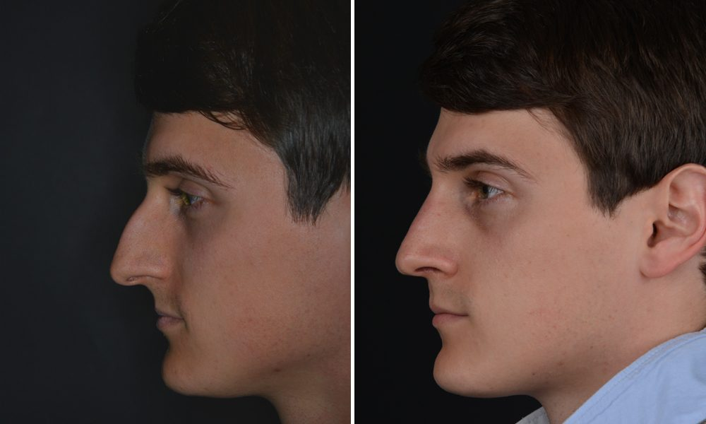Profilkorrektur mit Aufbau der Nasenwurzel