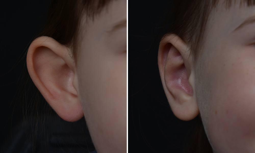 Das Ohr eines Kindes mit abstehenden Ohren vor und nach der Ohrenkorrektur.