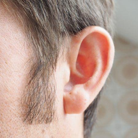 Das Bild eines Ohres nach der Ohrenkorrektur.