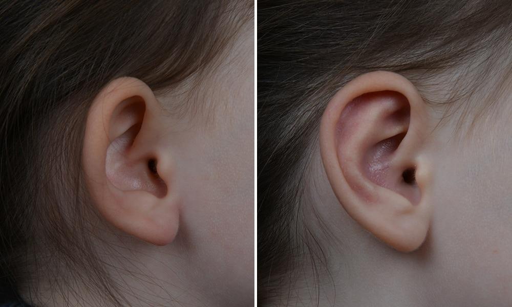 Das Ohr eines Kindes vor und nach der Ohrenkorrektur.