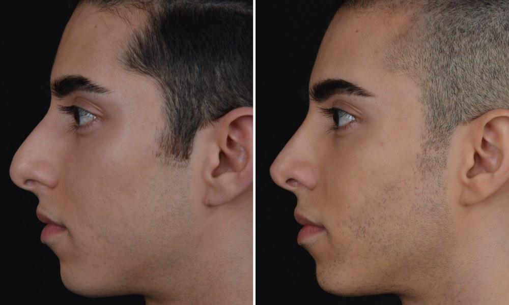 Nasen op vorher nachher mann