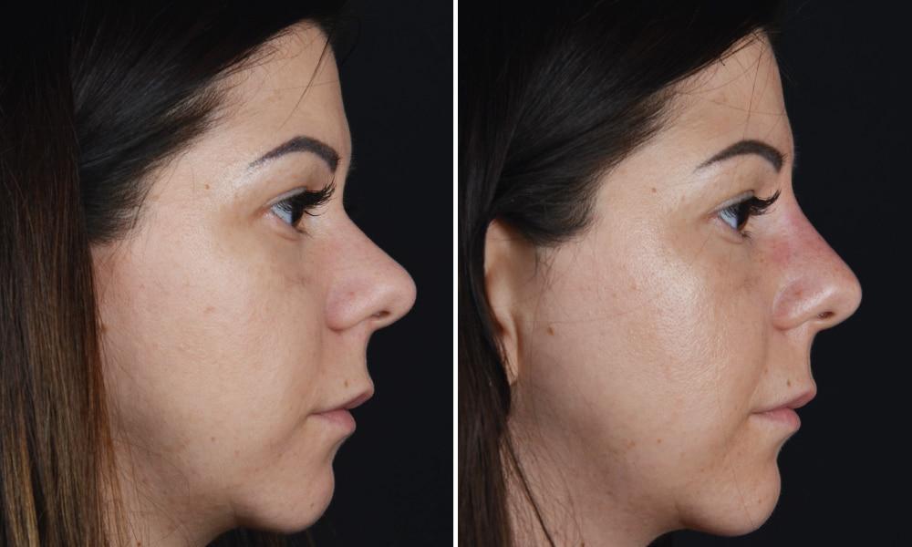 Nasenkorrektur vorher nachher bilder frauen